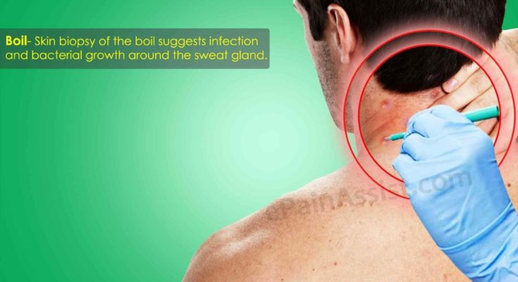 For Skin Infection Boil Back Pain From Infection Of Hair Follicle