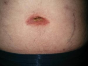 Treatment For Belly Button Pain Caused By 12 Different Medical