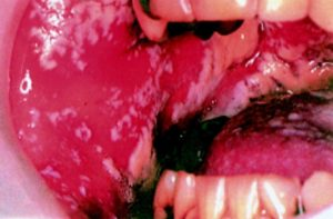 Home Cures For Oral Thrush In Adults