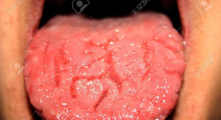 Candidiasis In The Tongue