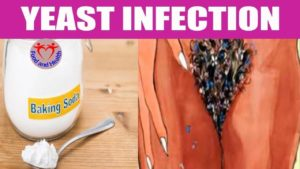 How To Use Baking Soda For Yeast Infection - Youtube
