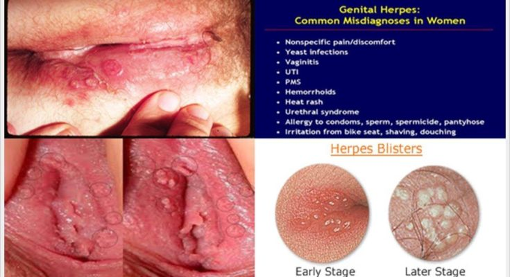 Symptoms Of Viral Infection In Mouth