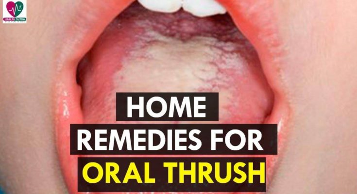 Home Remedies For Oral Thrush - Health Sutra - Youtube