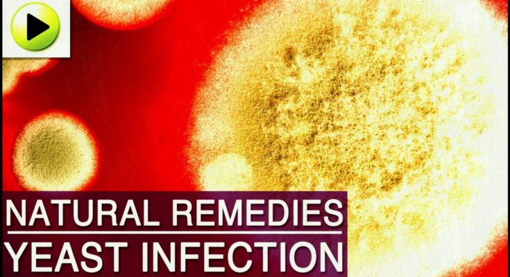 Yeast Infection Natural Ayurvedic Home Remedies - Coffee Table