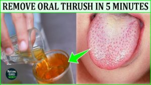 How To Get Rid Of Oral Thrush Naturally In Five Minutes - Oral Thrush