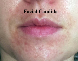 Candida Of Your Skin