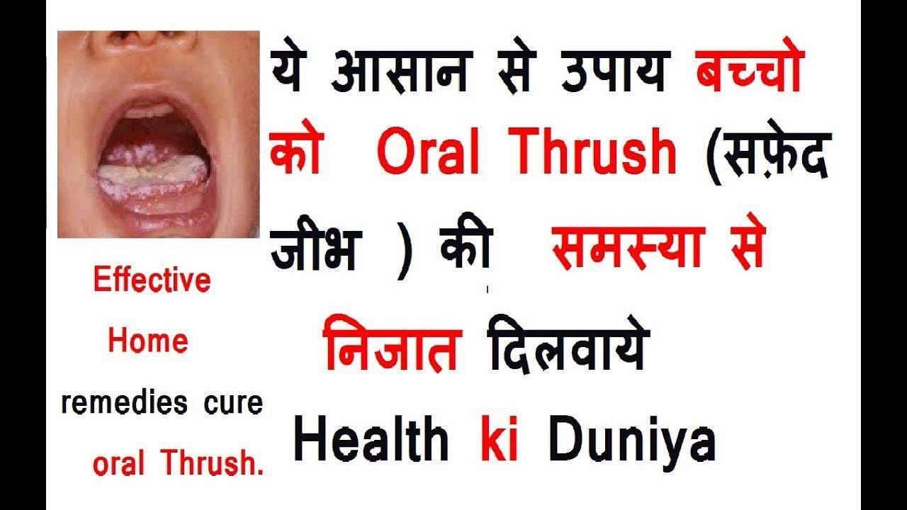 Just About All You Really Need To Know, How To Treat Oral Thrush
