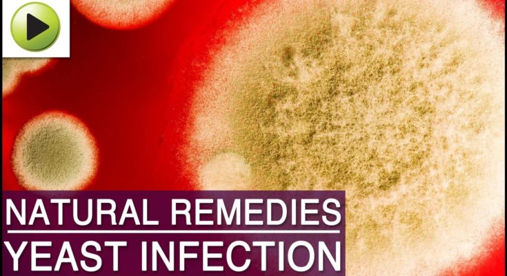 Yeast Infection - Natural Ayurvedic Home Cures - Cookeryshow