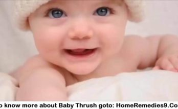Baby Thrush - Symptoms And Home Remedies For Thrush In Babies - Youtube
