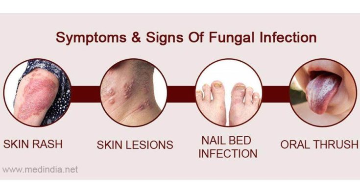 Fungal Infection Cure Home Cures Naturally - Youtube