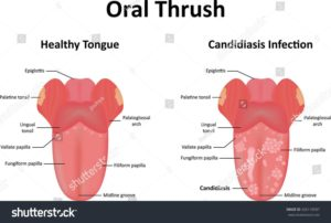 6 Tips Remedies For Oral Thrush At Home