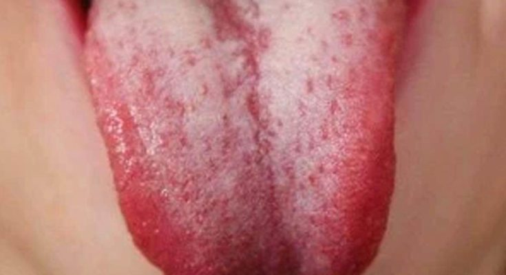 How To Treat Thrush On The Tongue Effective