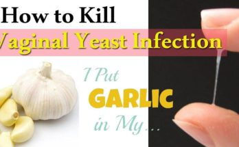 Home Cure For Vaginal Yeast Infection Naturally