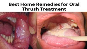 Oral Thrush Symptoms - Home Cures For Oral Thrush Treatment - Youtube