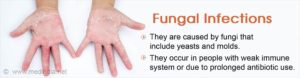 Fungal Infections - Causes