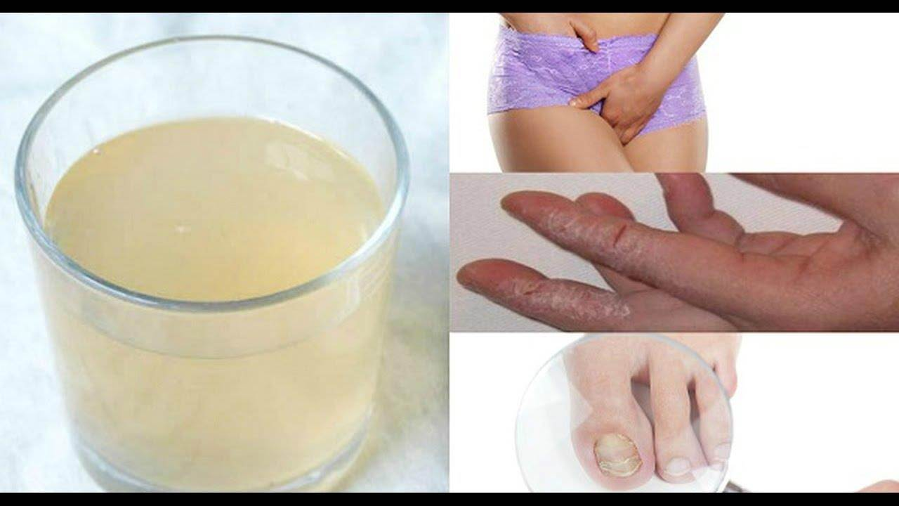 Homemade remedy for vaginal itching