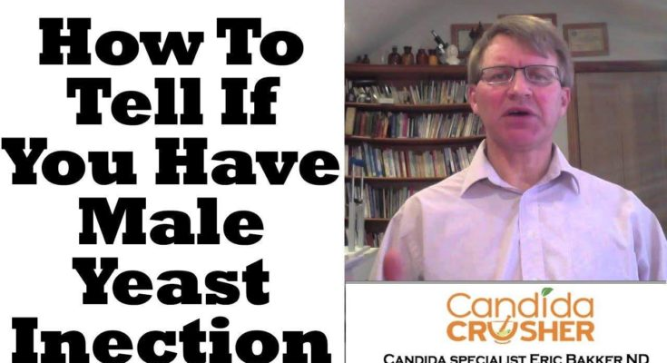 How To Tell If You Have A Male Yeast Infection - Youtube