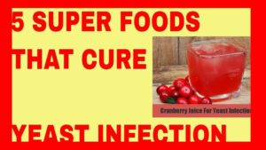 5 Super Foods That Cure Candidiasis