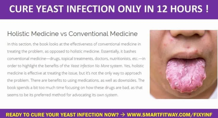 Best Way To Reduce Yeast Infection Fast - Youtube