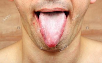 Oral Thrush Stock Photos
