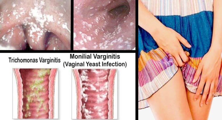 Vaginal Yeast-based Infections