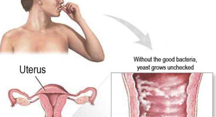 Vaginal Yeast-based Infections And Preventing Them