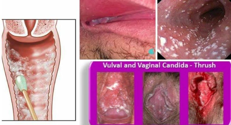 Home Remedies For Candidiasis