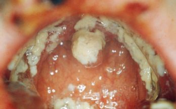 Science Source - Oral Thrush