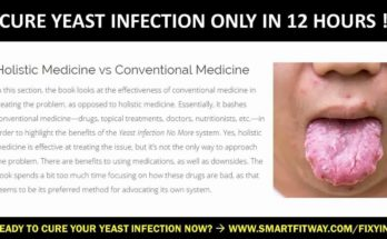 How To Ease Yeast Infection Symptoms - Youtube