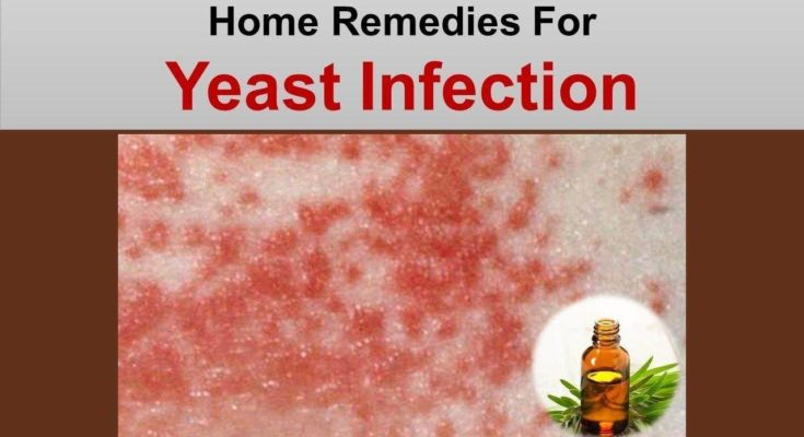 Home Remedies For Yeast Infection With Garlic